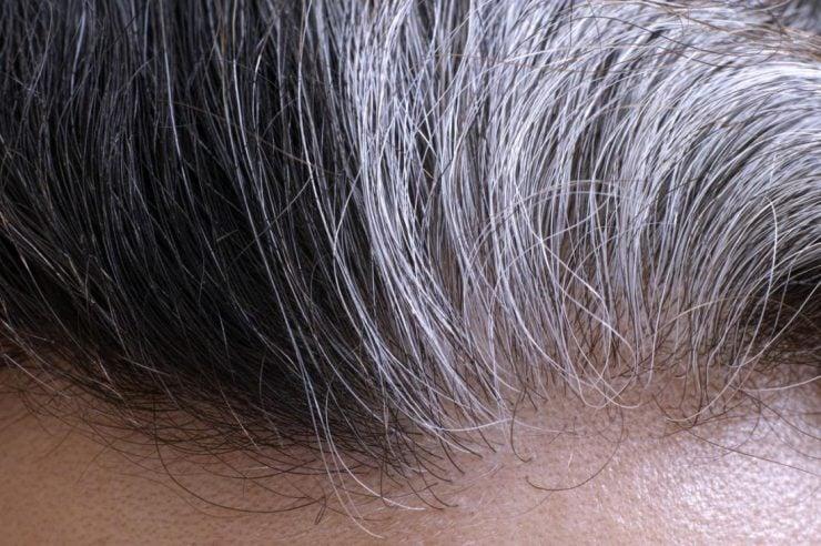 为什么少年也有可能长白发?