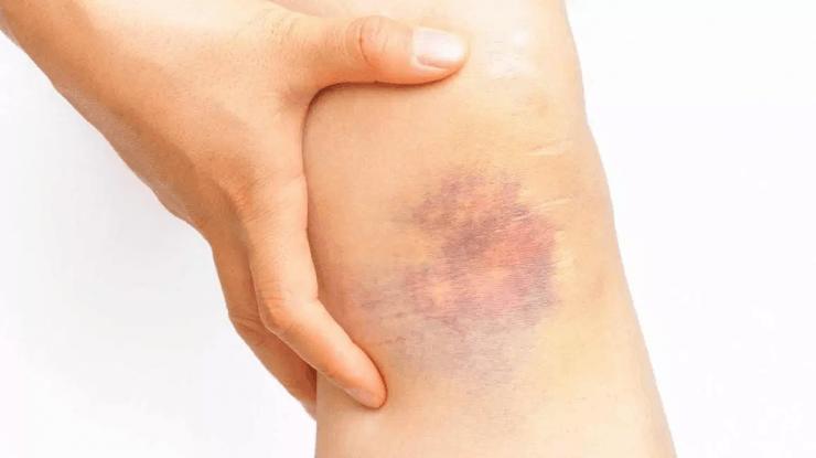 为什么碰伤的皮肤处会有乌青块?