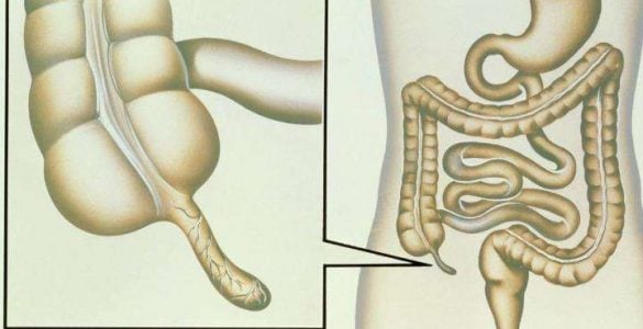 盲肠与阑尾是不是一回事?