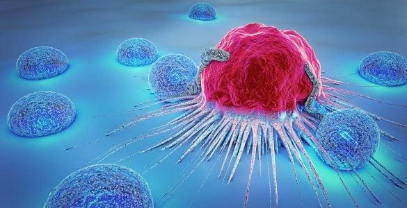癌细胞为什么会转移?