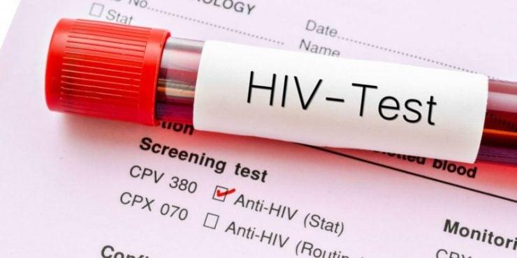 """为什么艾滋病被称为""""20世纪的瘟疫""""?"""